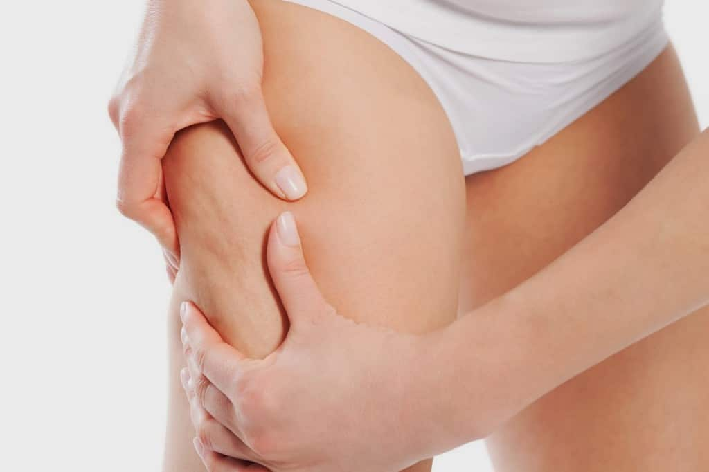 Cellulite Removal - Getting Rid Of Cellulite